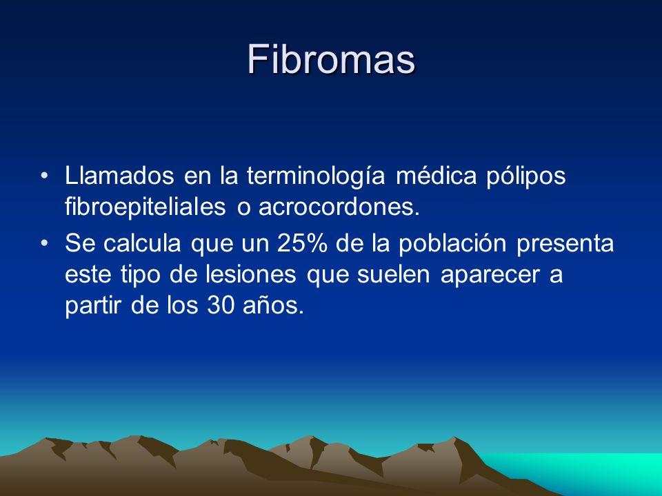 Fibromas Llamados en la terminología médica pólipos fibroepiteliales o acrocordones.
