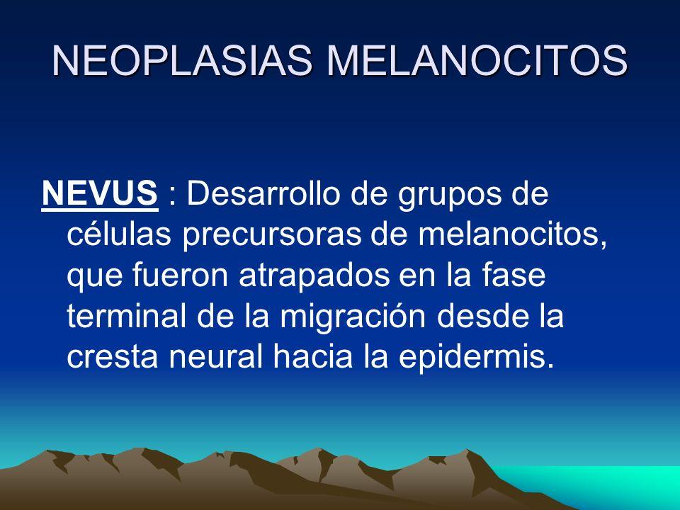 NEOPLASIAS MELANOCITOS