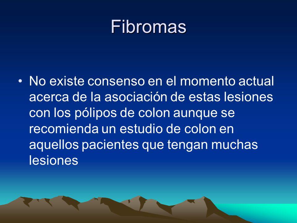 Fibromas
