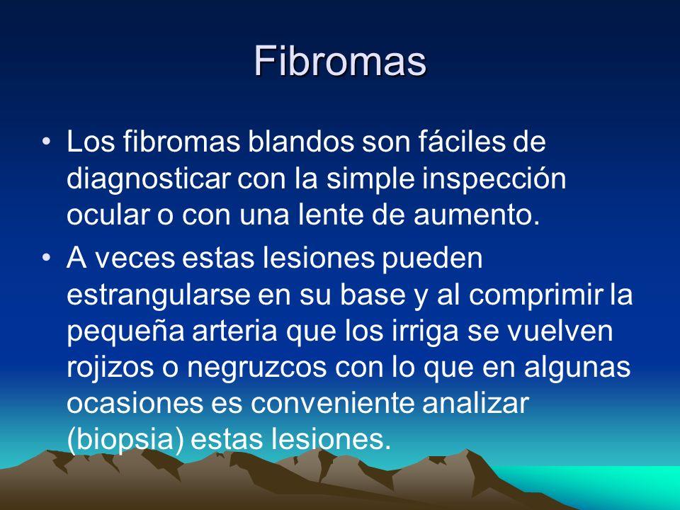 Fibromas Los fibromas blandos son fáciles de diagnosticar con la simple inspección ocular o con una lente de aumento.
