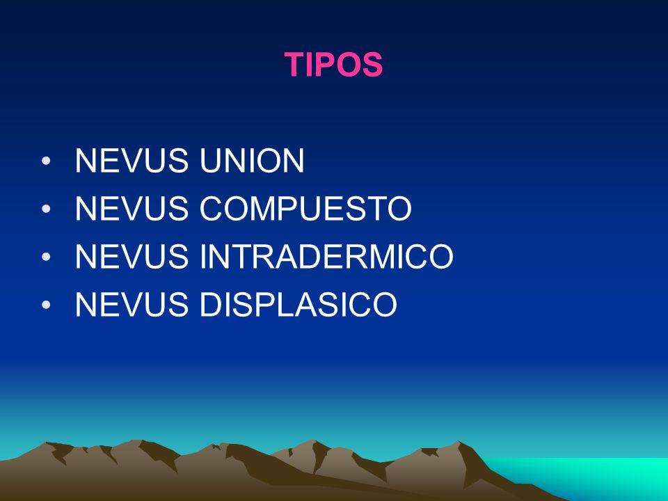 TIPOS NEVUS UNION NEVUS COMPUESTO NEVUS INTRADERMICO NEVUS DISPLASICO