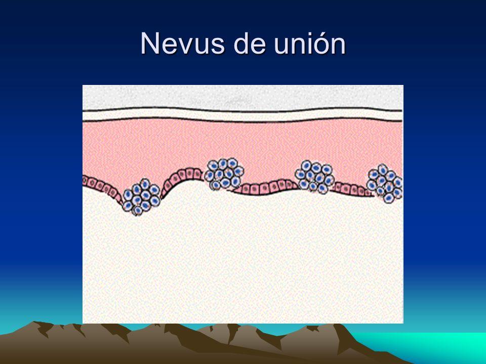 Nevus de unión