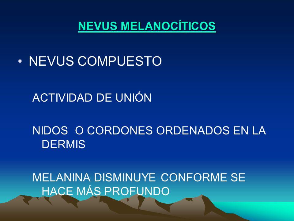 NEVUS COMPUESTO NEVUS MELANOCÍTICOS ACTIVIDAD DE UNIÓN