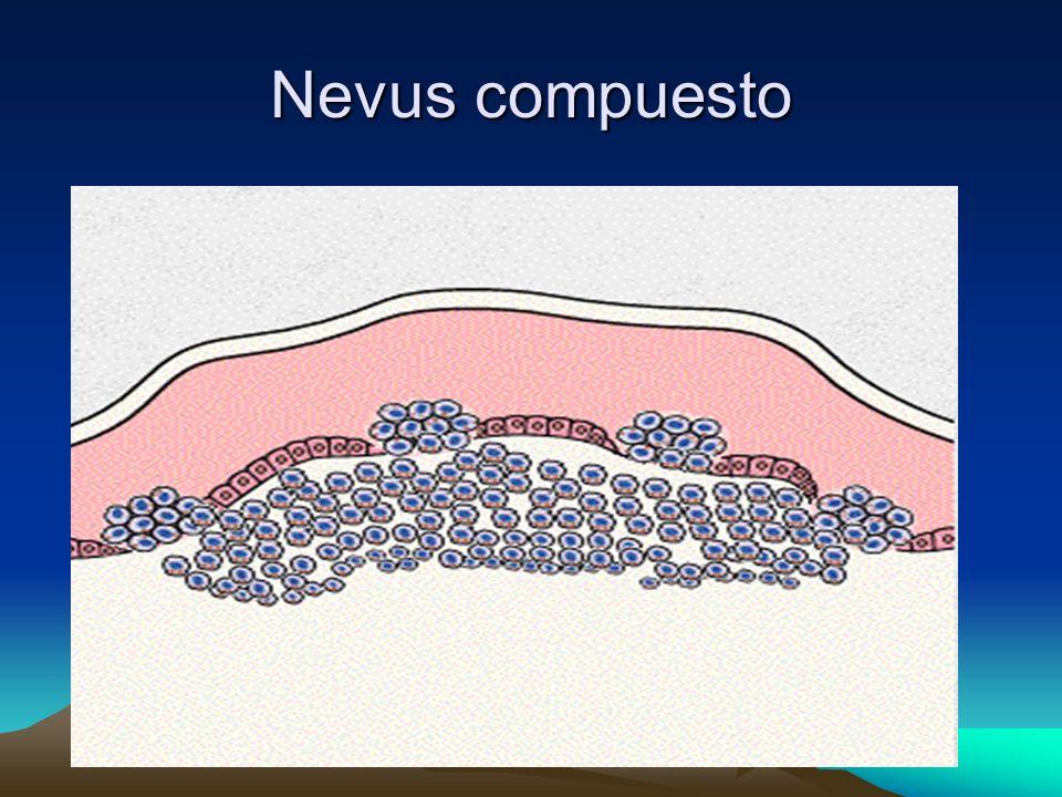 Nevus compuesto