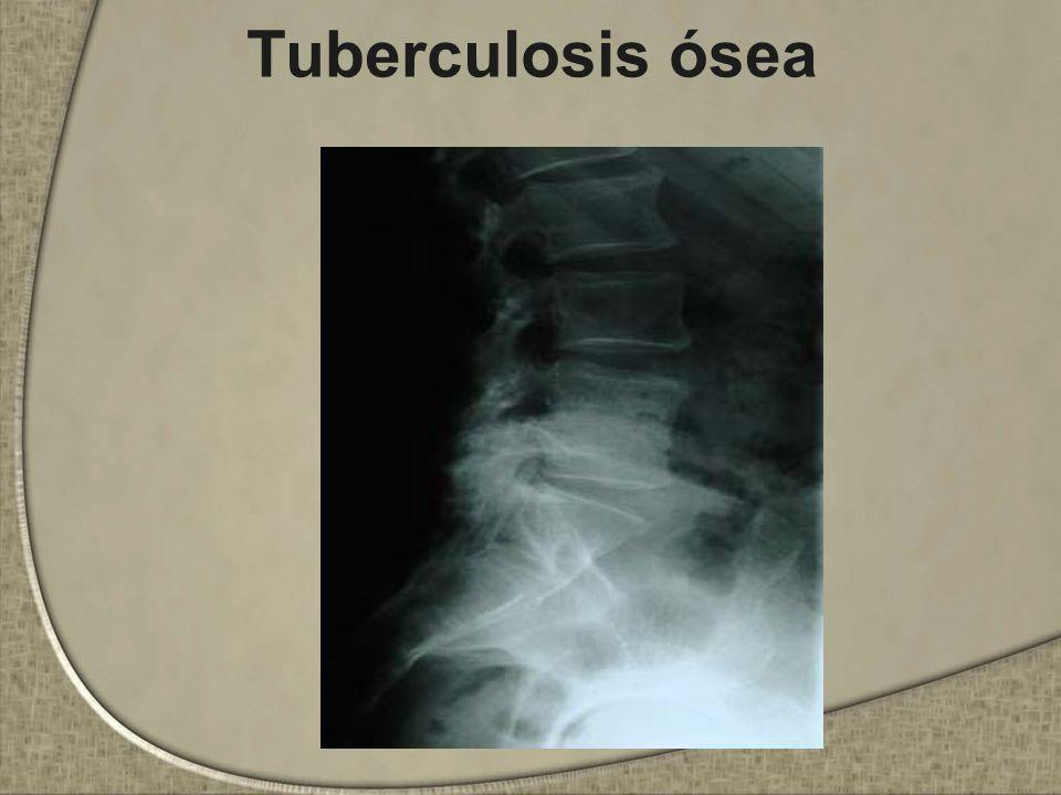 Tuberculosis ósea