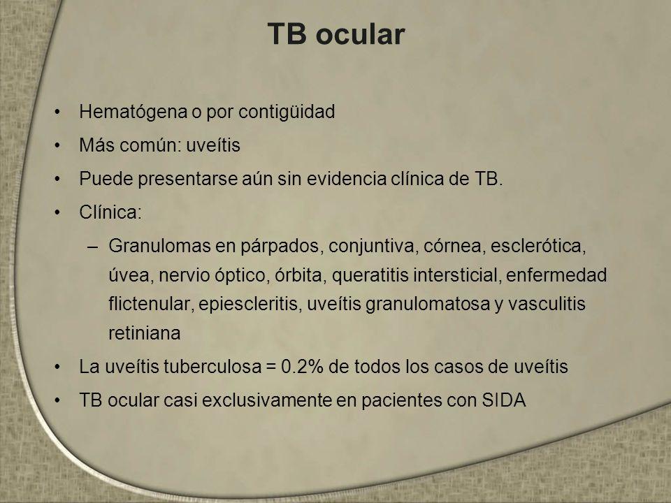 TB ocular Hematógena o por contigüidad Más común: uveítis