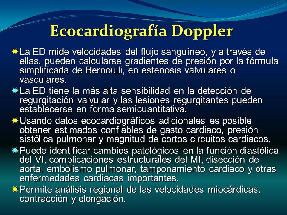 Ecocardiografía Doppler