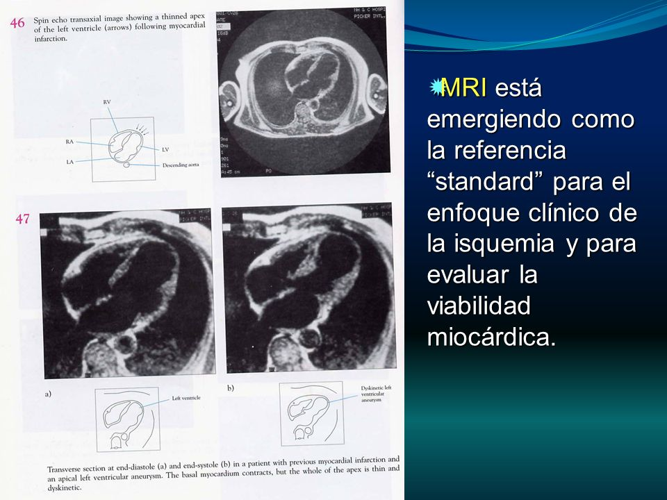 MRI está emergiendo como la referencia standard para el enfoque clínico de la isquemia y para evaluar la viabilidad miocárdica.
