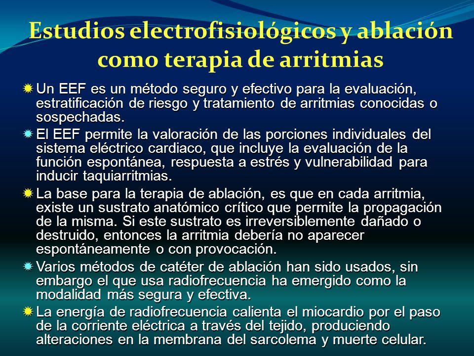 Estudios electrofisiológicos y ablación como terapia de arritmias
