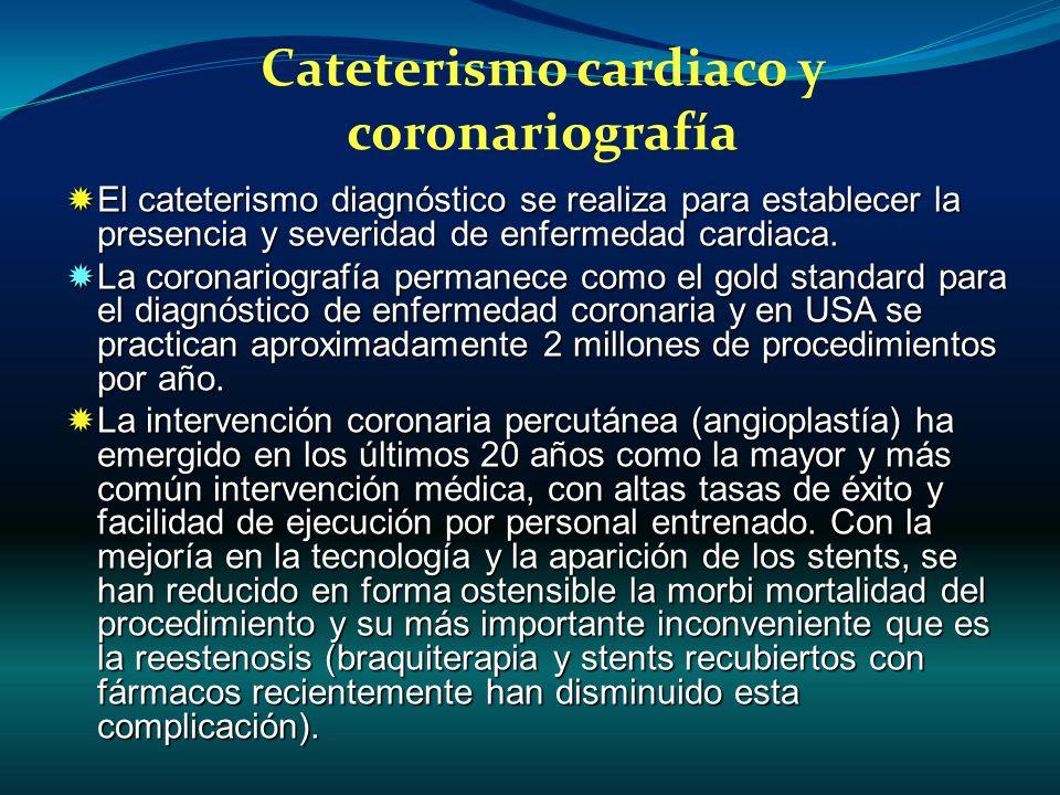 Cateterismo cardiaco y coronariografía