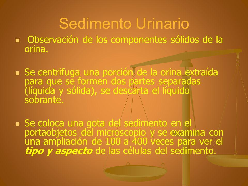 Sedimento Urinario Observación de los componentes sólidos de la orina.