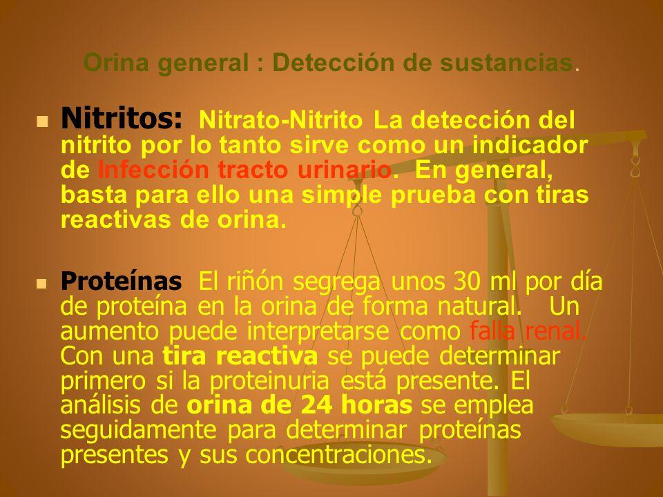 Orina general : Detección de sustancias.