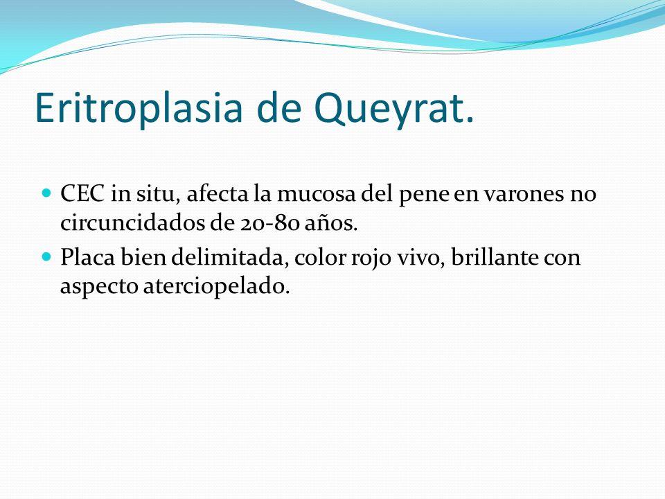 Eritroplasia de Queyrat.