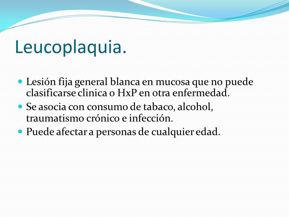 Leucoplaquia. Lesión fija general blanca en mucosa que no puede clasificarse clinica o HxP en otra enfermedad.