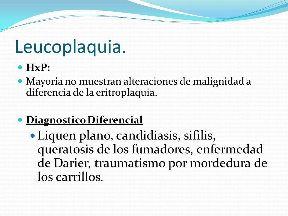Leucoplaquia.HxP: Mayoría no muestran alteraciones de malignidad a diferencia de la eritroplaquia. Diagnostico Diferencial.