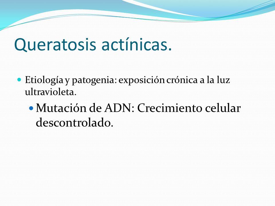 Queratosis actínicas. Etiología y patogenia: exposición crónica a la luz ultravioleta.