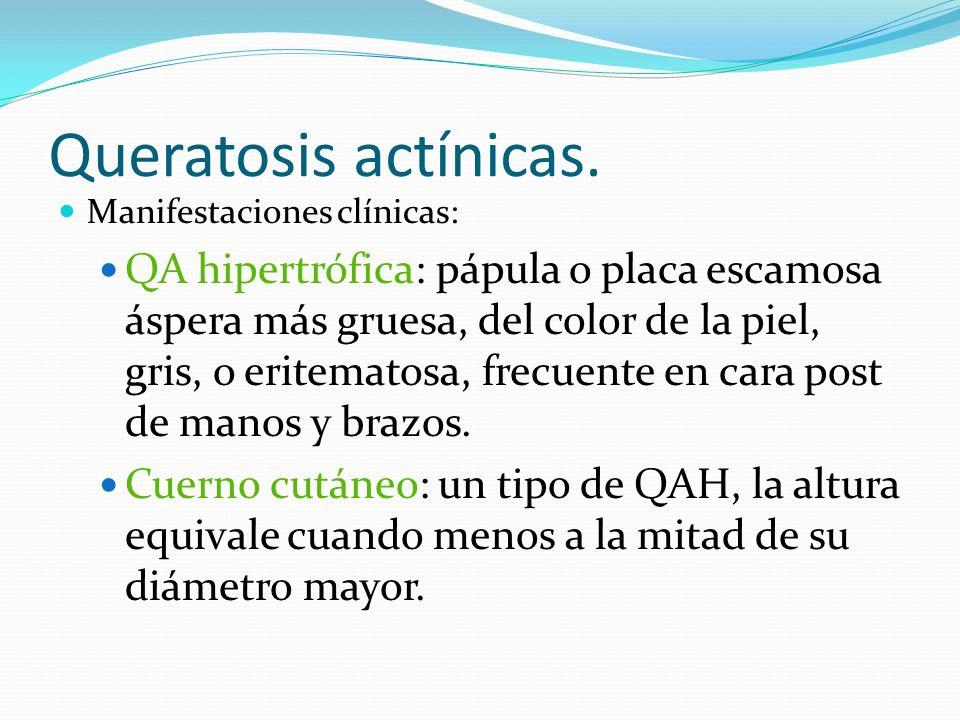 Queratosis actínicas.Manifestaciones clínicas: