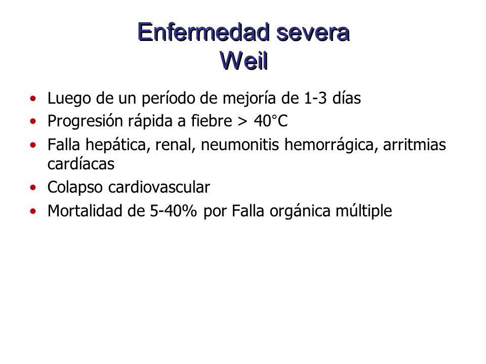 Enfermedad severa Weil