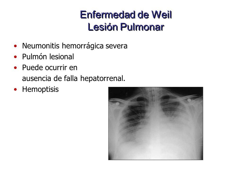 Enfermedad de Weil Lesión Pulmonar