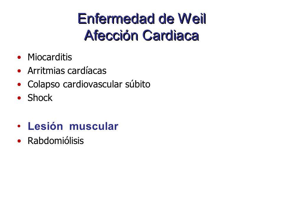 Enfermedad de Weil Afección Cardiaca