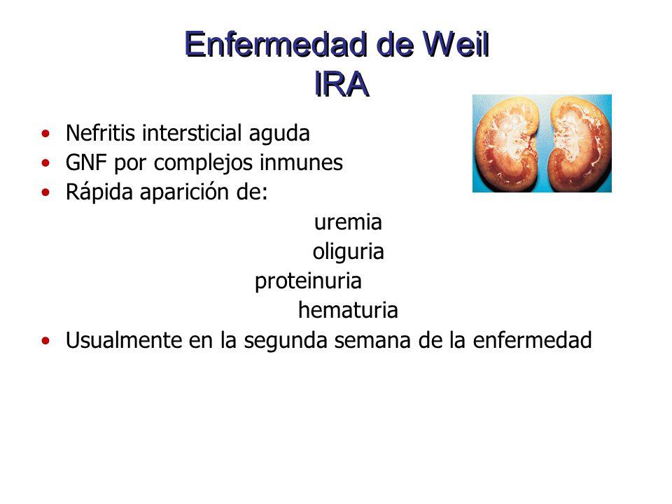 Enfermedad de Weil IRA Nefritis intersticial aguda