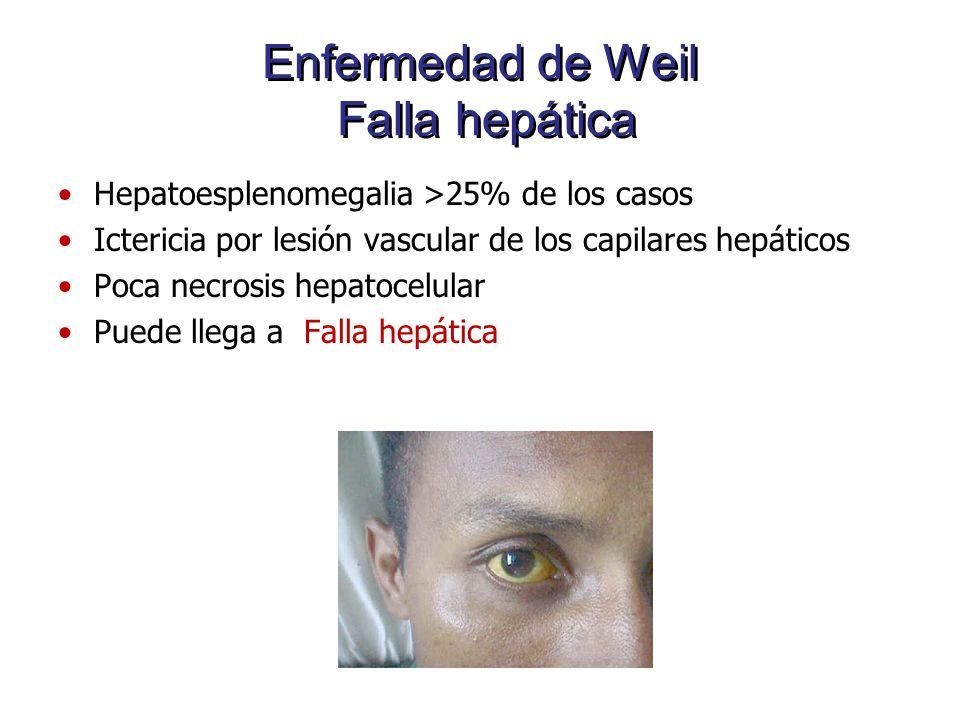 Enfermedad de Weil Falla hepática