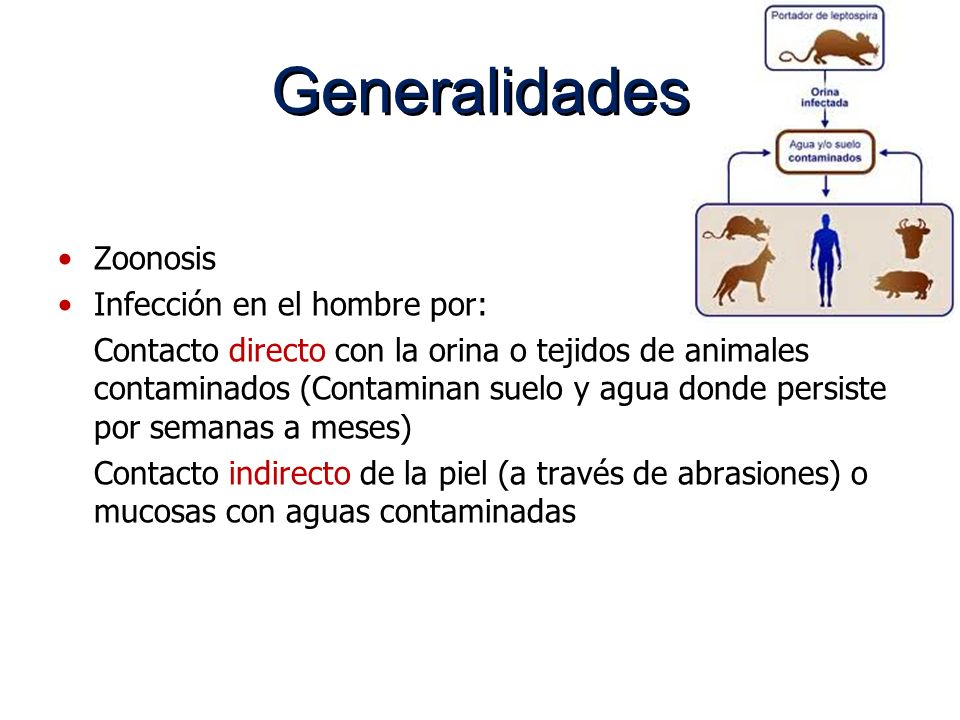 Generalidades Zoonosis Infección en el hombre por: