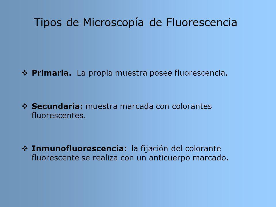 Tipos de Microscopía de Fluorescencia