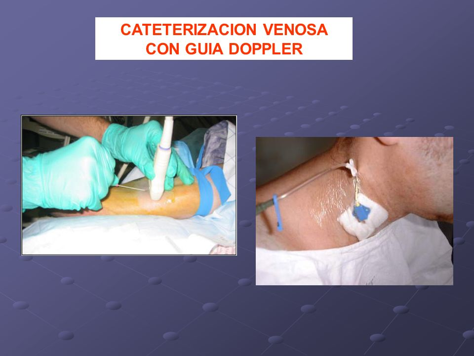 CATETERIZACION VENOSA CON GUIA DOPPLER