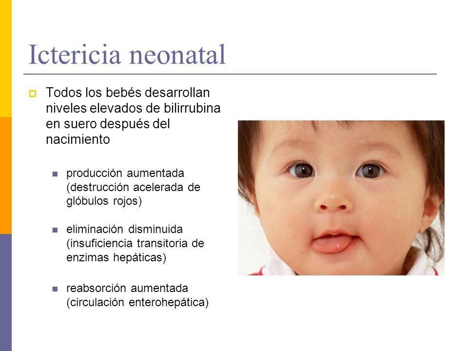 Ictericia neonatal Todos los bebés desarrollan niveles elevados de bilirrubina en suero después del nacimiento.