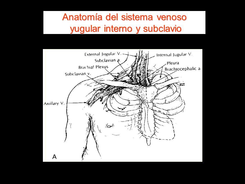Anatomía del sistema venoso yugular interno y subclavio