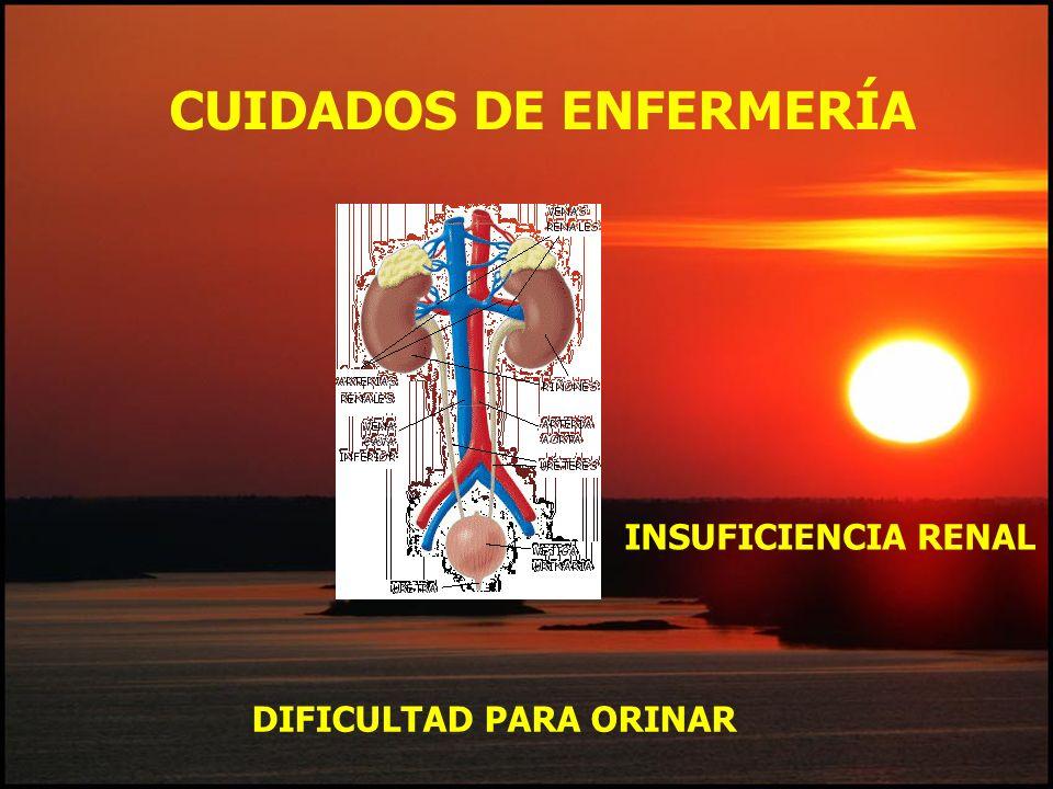CUIDADOS DE ENFERMERÍA DIFICULTAD PARA ORINAR