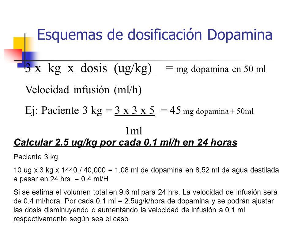 Esquemas de dosificación Dopamina