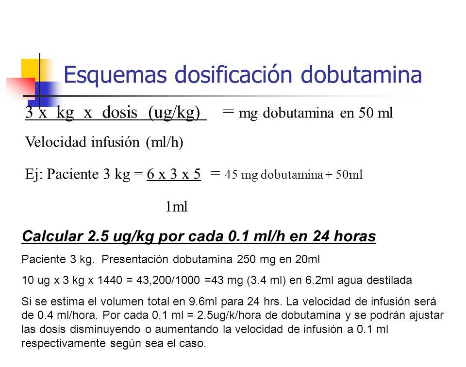 Esquemas dosificación dobutamina