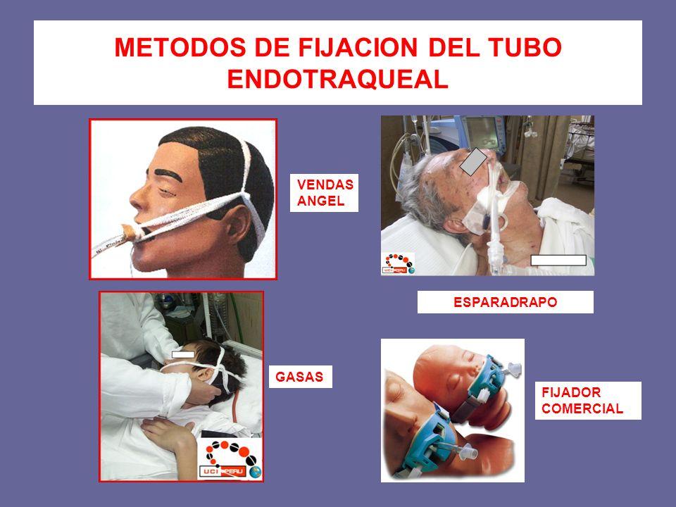 METODOS DE FIJACION DEL TUBO ENDOTRAQUEAL