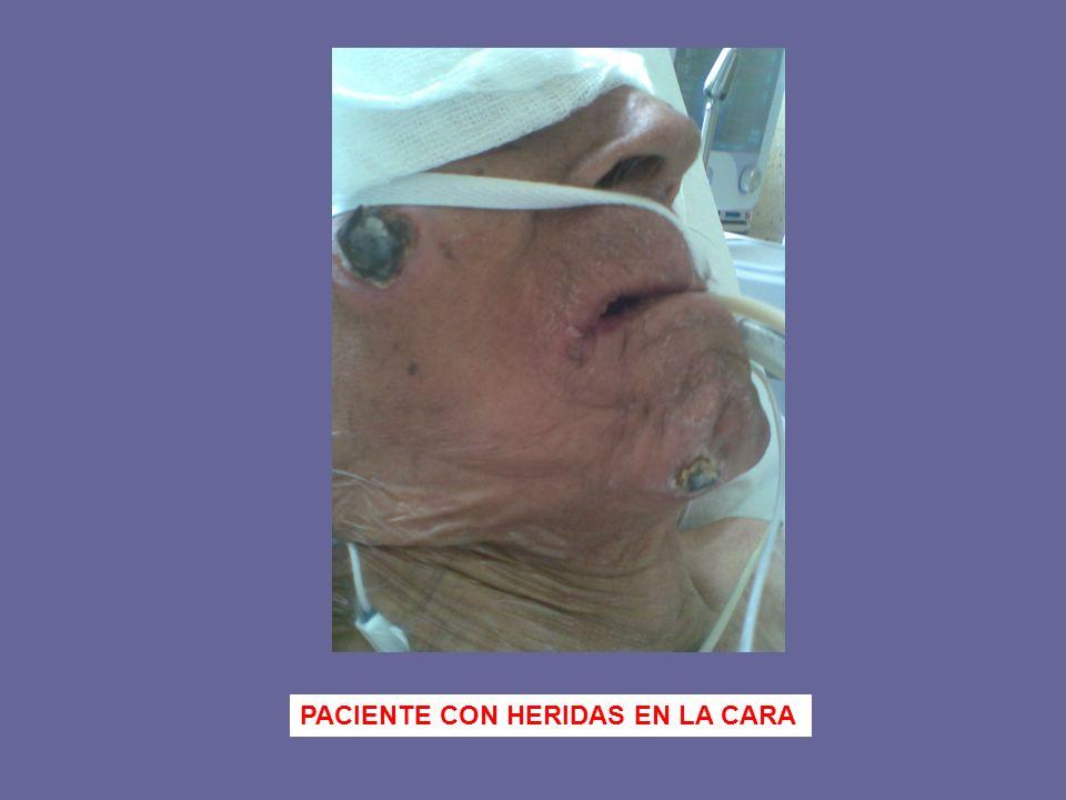 PACIENTE CON HERIDAS EN LA CARA