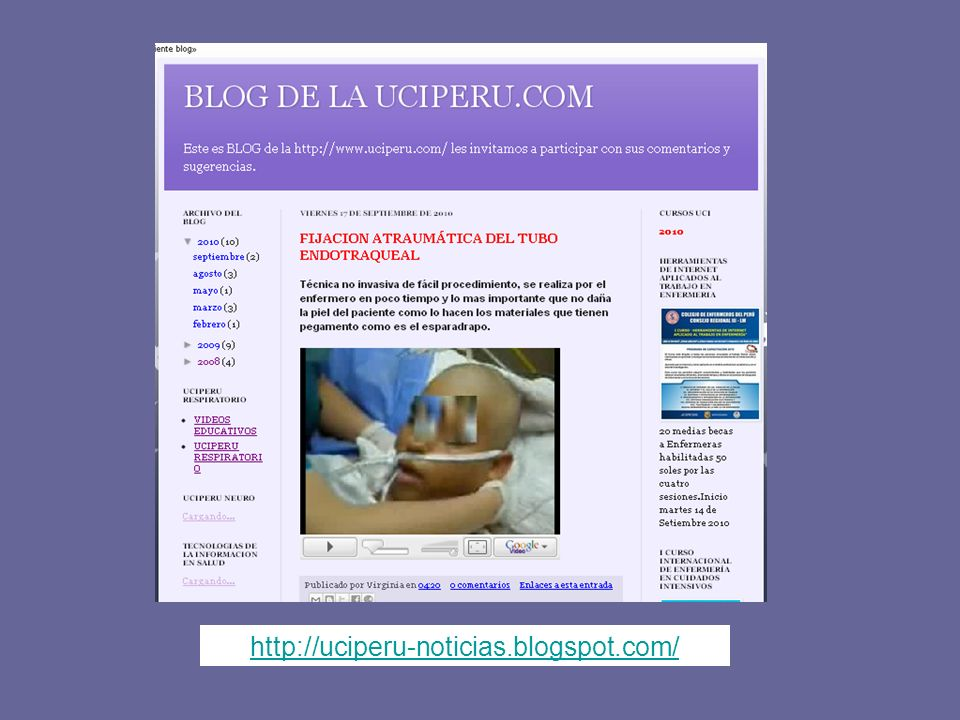 http://uciperu-noticias.blogspot.com/