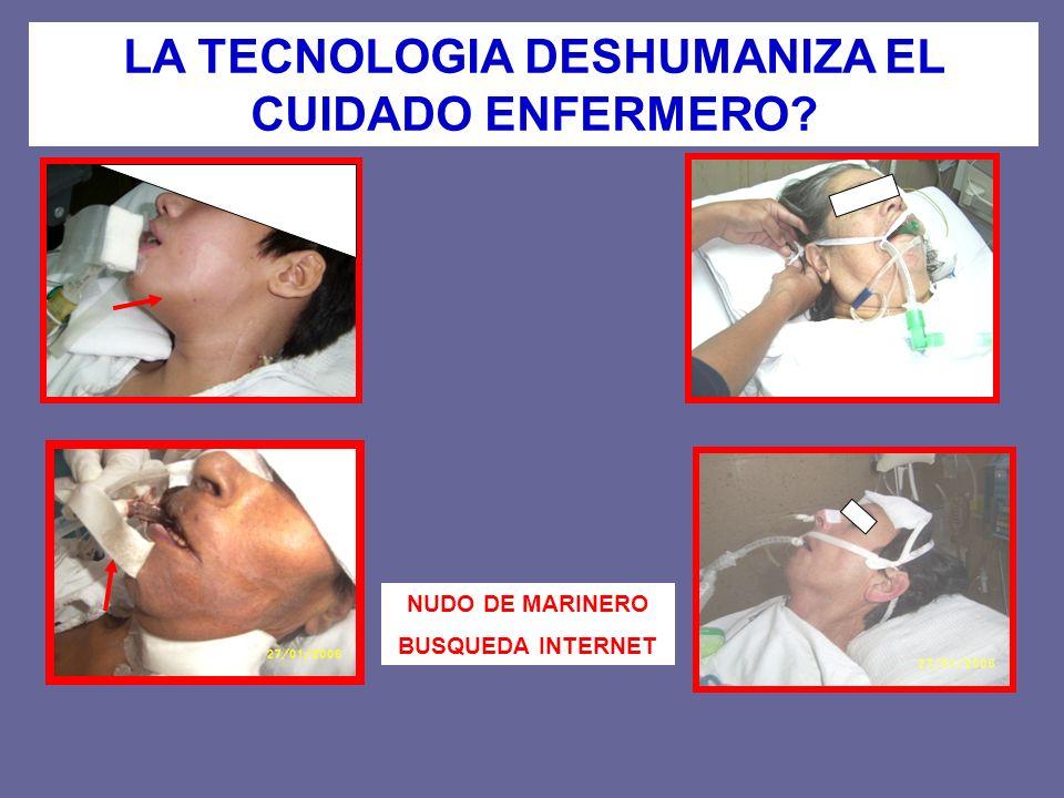 LA TECNOLOGIA DESHUMANIZA EL CUIDADO ENFERMERO
