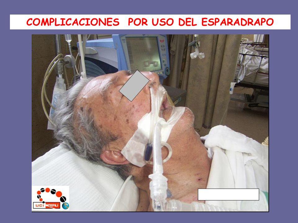 COMPLICACIONES POR USO DEL ESPARADRAPO