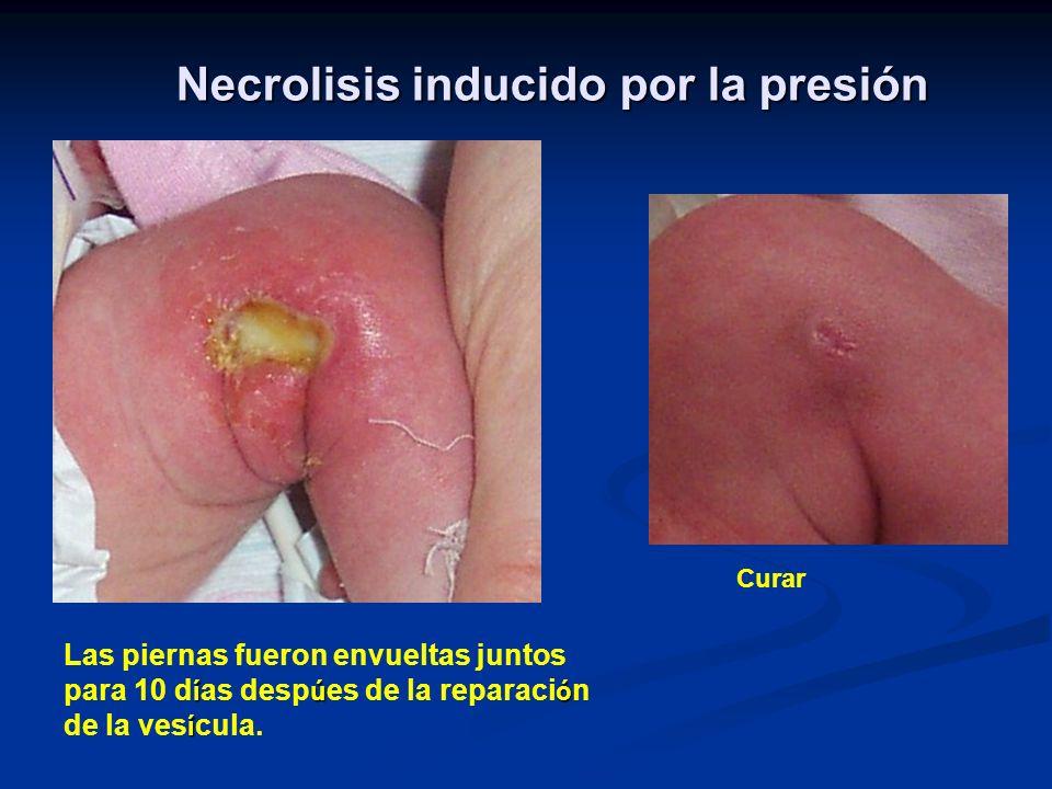 Necrolisis inducido por la presión