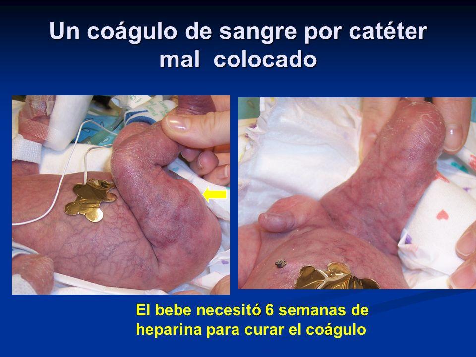 Un coágulo de sangre por catéter mal colocado