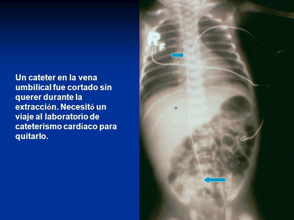 Un cateter en la vena umbilical fue cortado sin querer durante la extracción.