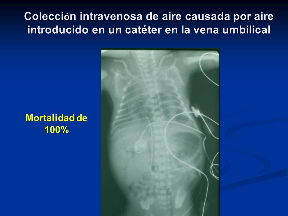 Colección intravenosa de aire causada por aire introducido en un catéter en la vena umbilical