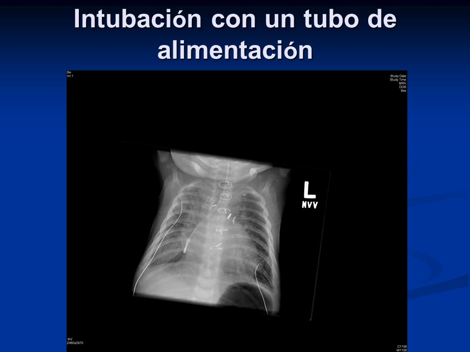 Intubación con un tubo de alimentación