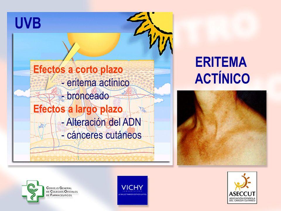 UVB ERITEMA ACTÍNICO Efectos a corto plazo - eritema actínico