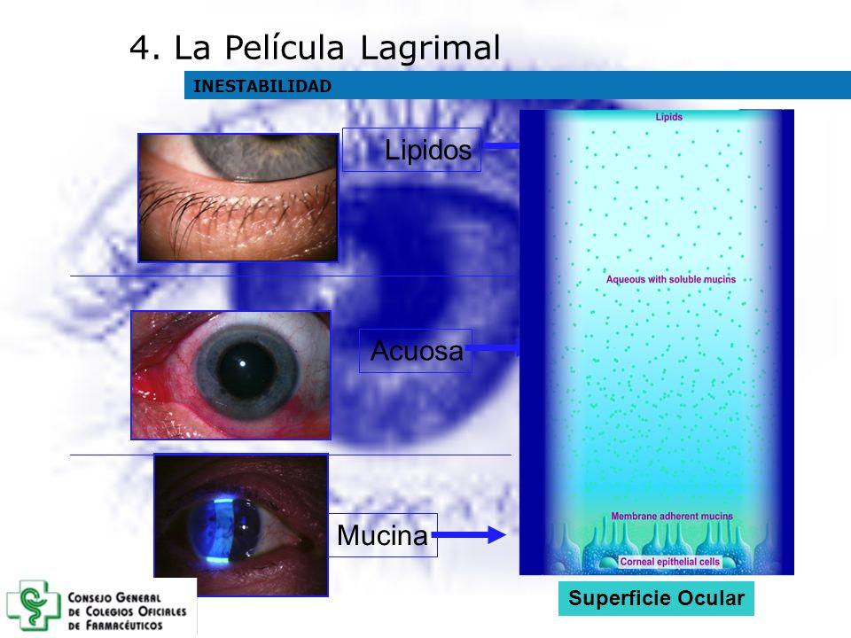 4. La Película Lagrimal Lipidos Acuosa Mucina Superficie Ocular