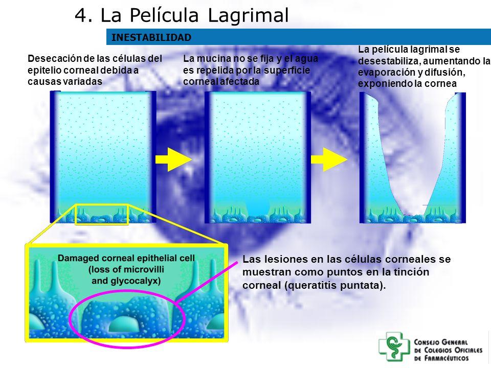 4. La Película Lagrimal INESTABILIDAD. La película lagrimal se desestabiliza, aumentando la evaporación y difusión, exponiendo la cornea.