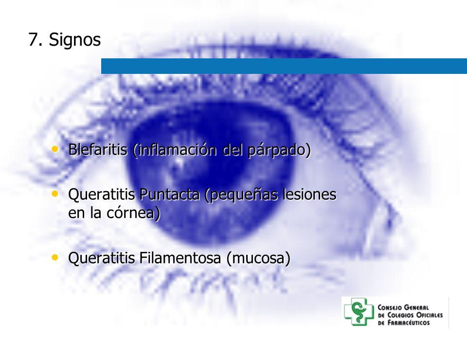 7. Signos Blefaritis (inflamación del párpado)