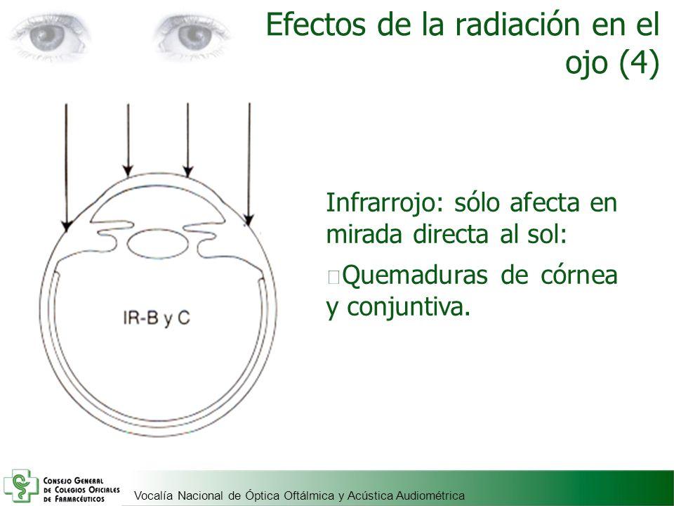 Efectos de la radiación en el ojo (4)