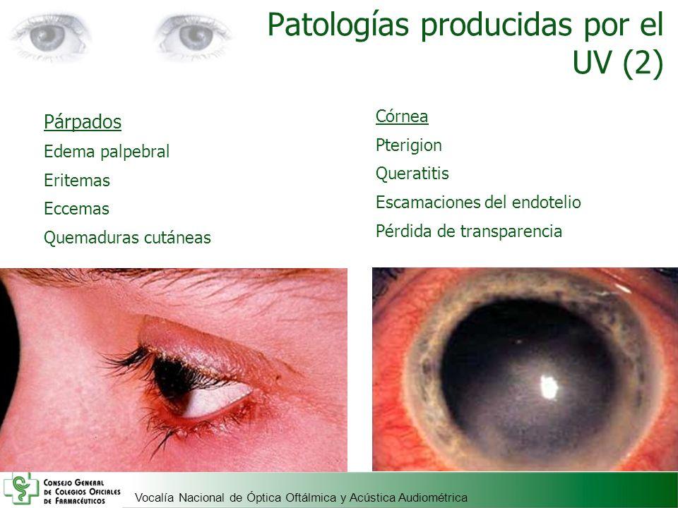 Patologías producidas por el UV (2)